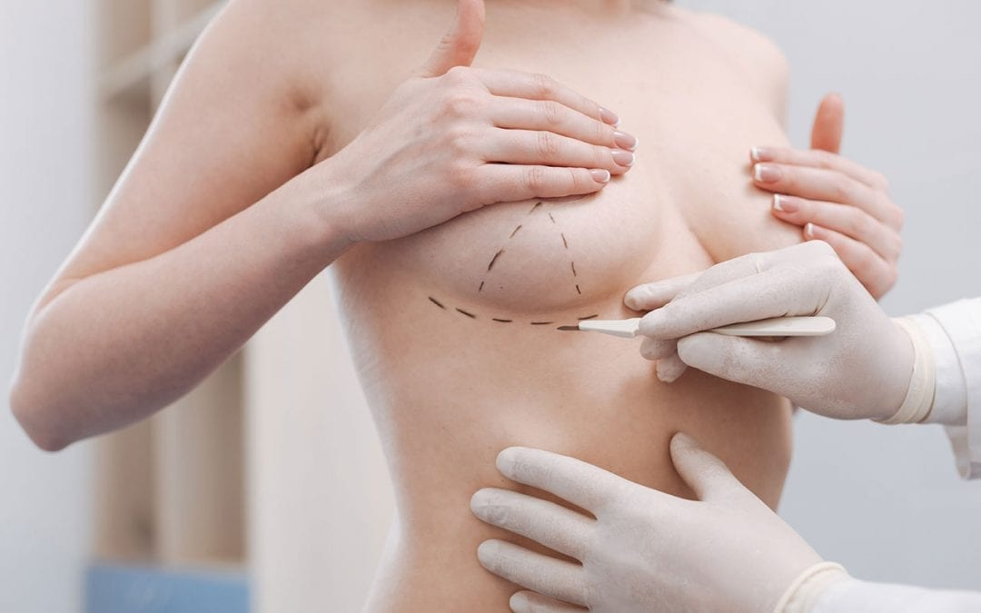 Mastopexy (Breast uplift) – how long will the result last?